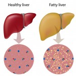 The way of ensuring optimum liver function includes a low toxin lifestyle: a healthy, clean diet;